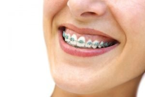 A patient happy with their new Orthodontics